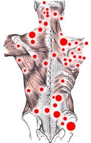 Meridianos e Trigger Points